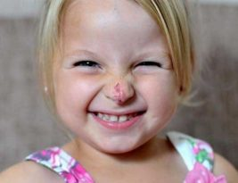 Is it possible to remove Birthmarks? Get help from child skin specialist/Pediatric Dermatologist