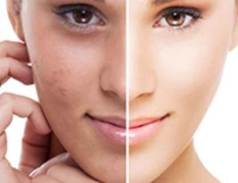 Don't mask your face with chemicals, Uproot Hyperpigmentation from your skin