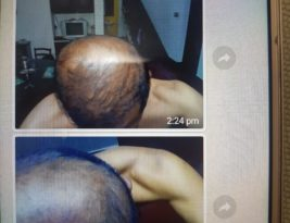 AMAZING RESULTS OF PRP TREATMENT FOR HAIR REGROWTH