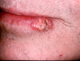 HOW TO GET PROTECTED FROM SQUAMOUS CELL CARCINOMA ON LIPS?