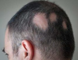 MIND YOUR HAIR!! GET TREATMENT FOR ALOPECIA