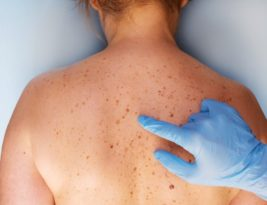 How to Prevent Skin Cancer? Dermatologists say diet can help!