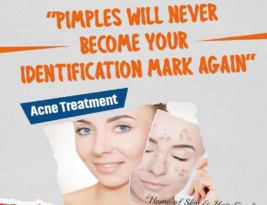 Pimples will never become your identification mark again