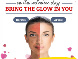 On this valentine day, bring the glow in you – Acne Treatment